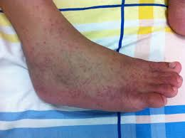 Picture of zika rash on foot